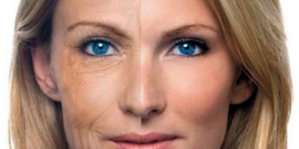 Los beneficios del lifting facial